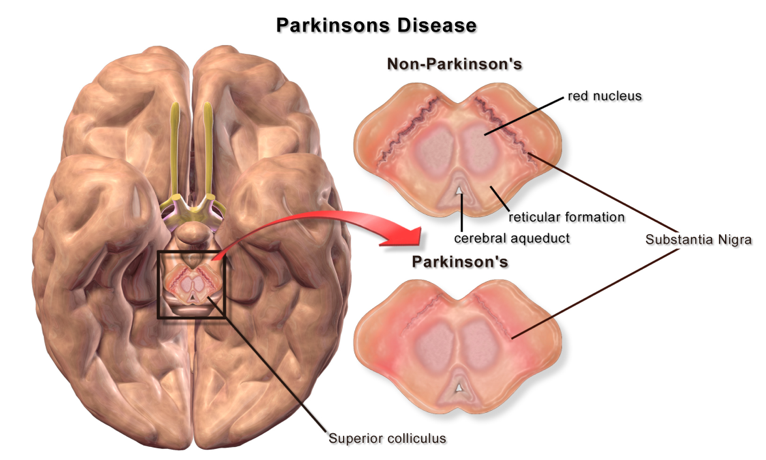 File:Blausen 0704 ParkinsonsDisease.png - Wikimedia Commons